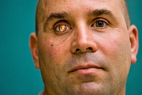 Prosthetic eye with Marines emblem
