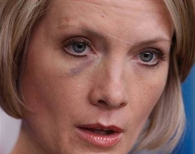 Dana Perino black eye