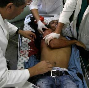 Gaza wounded journalist